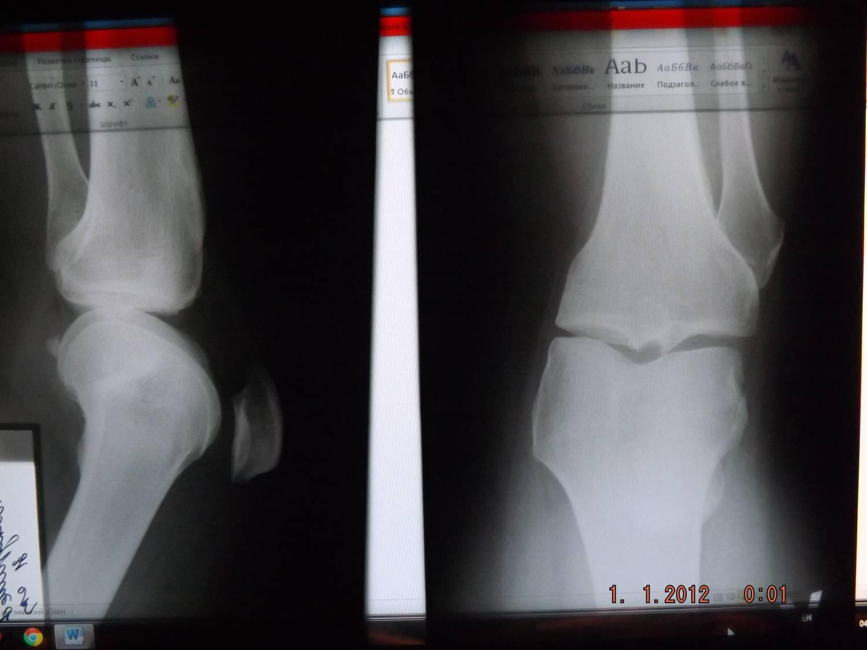 Посттравматический остеомиелит ложный сустав инвалидность известковый бурсит плечевого сустава лечение